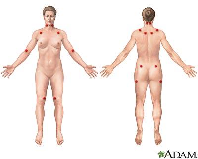 Fibromialgia x Acupuntura