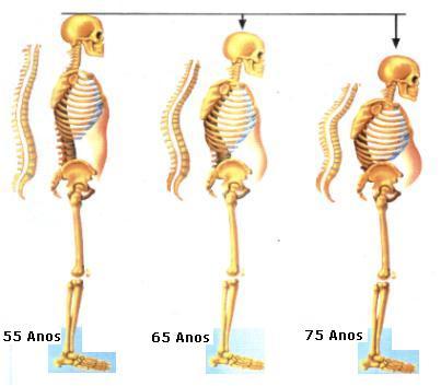 tratarmento osteoporose